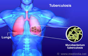 Día Mundial de Lucha contra la Tuberculosis